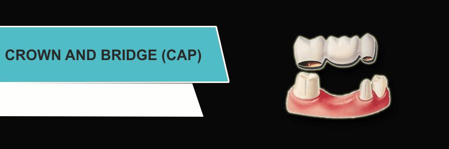 CROWN And BRIDGE (CAP)