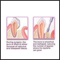 gums surgery