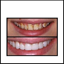 smile designing treatment